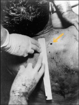 JFK, back wound, autopsy