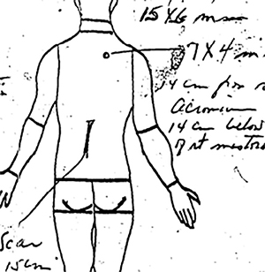 JFK, back wound, diagram