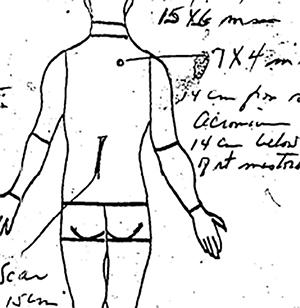 JFK, back wound, diagram