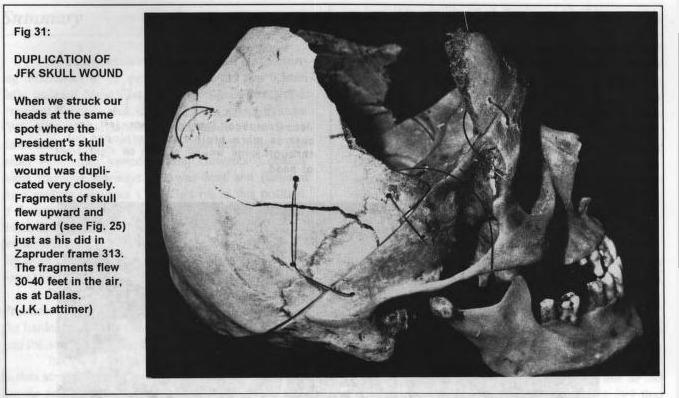 JFK, skull wound