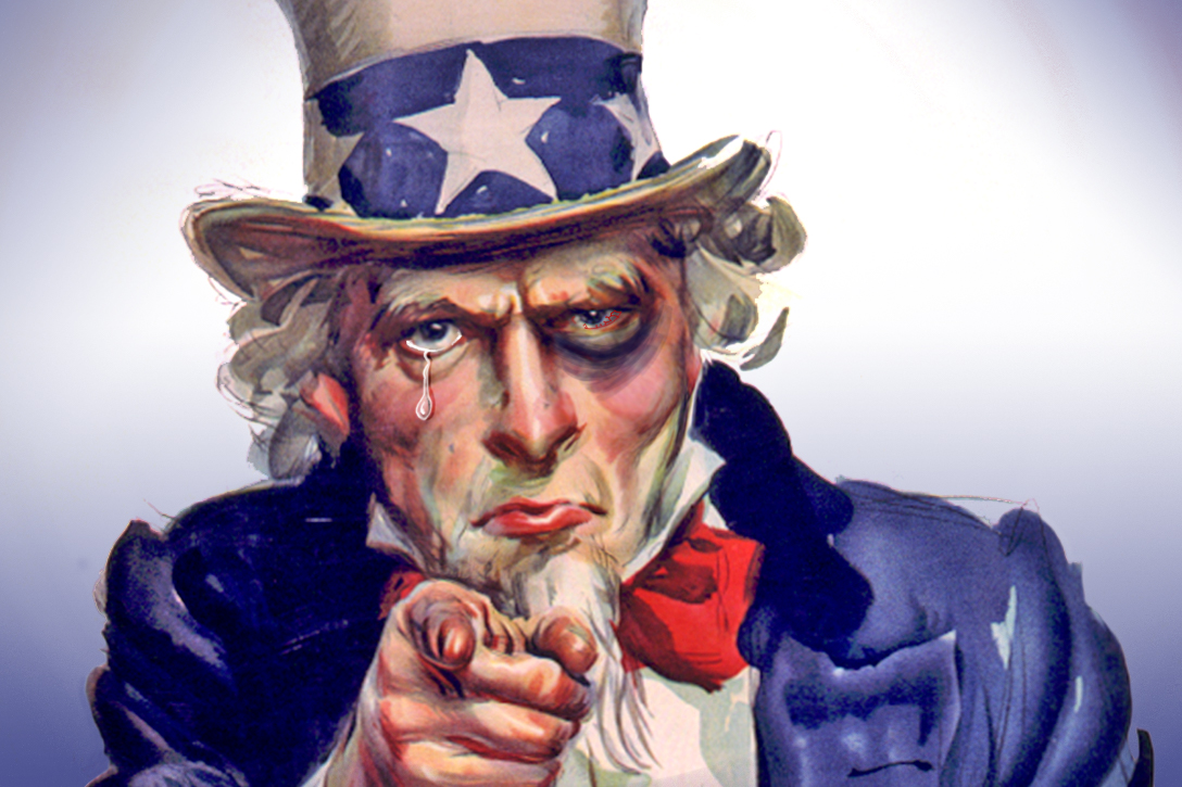 Uncle Sam, black eye