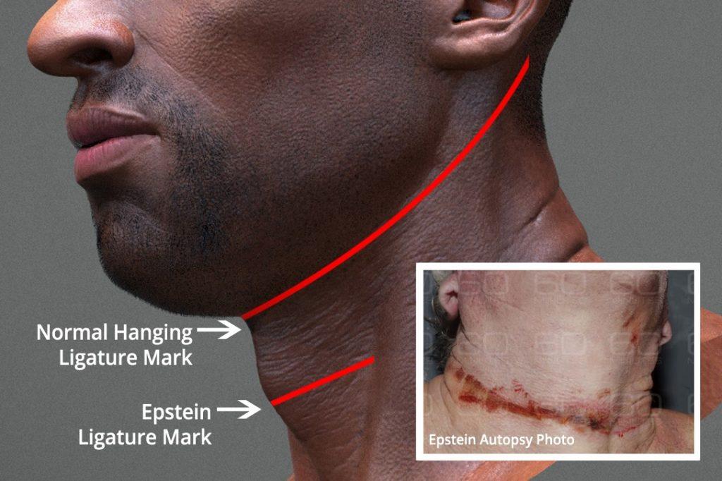 Jeffrey Epstein, ligature marks